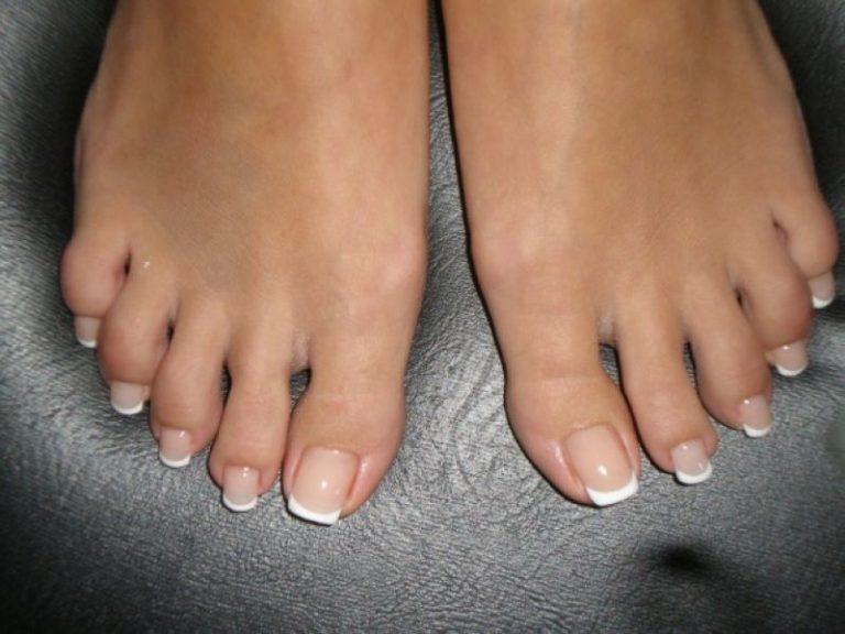 ногти на ногах сыпятся